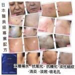 Ystella 四重奏蠶絲面膜 日本醫美級專業配方 (1盒5片)