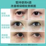 JUJY 全新升級第2代多極射頻美眼儀