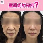 Protop 醫美級少女7合1童顏療程 (現貨)
