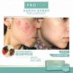 Protop Pore Refine 嫩肌針 (收毛孔/減少暗粒)5mlx10