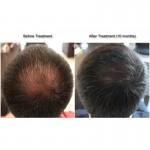 NANOGEN 頭髮生長因子強效修護精華液 (男士專用)
