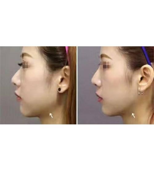 日本BPC超聲刀睡美人精華面膜 最強瘦面神器