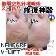 NEUFACE V-LIFT Plus 凹凸洞救星修復神器
